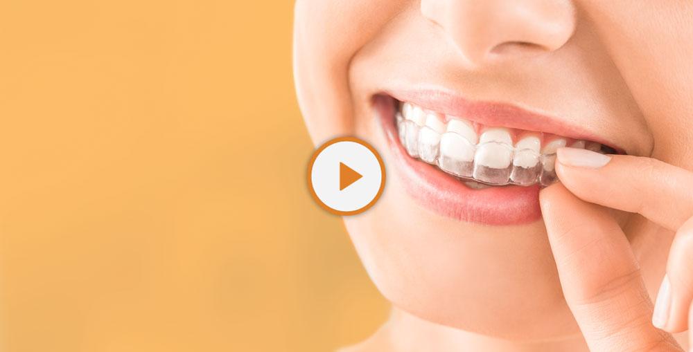 dental patient wearing Invisalign